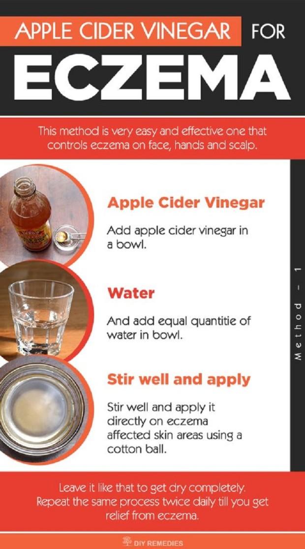 Apple-Cider-Vinegar-Eczema-Remedy