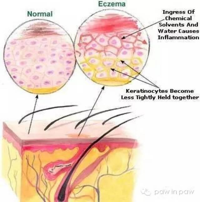 best ways to use apple cider vinegar to treat eczema